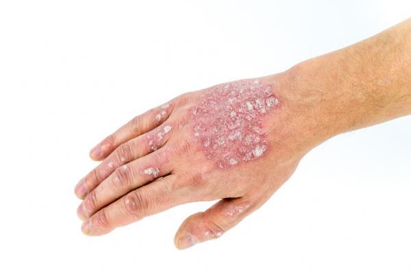 Psoriasis pustulosa: causas y tratamiento - Remedios caseros para aliviar la psoriasis pustulosa