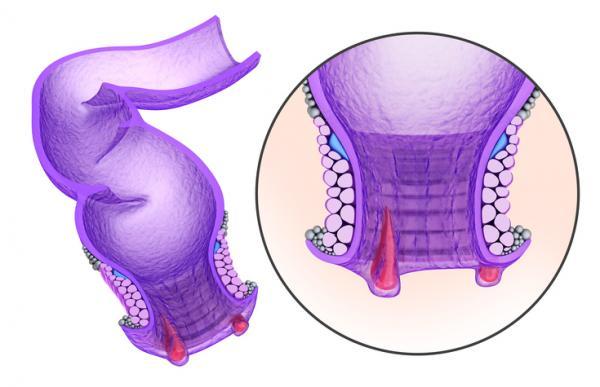 Cómo aliviar el dolor después de una operación de hemorroides - Hemorroidectomía: qué es y cuánto dura el postoperatorio de las hemorroides