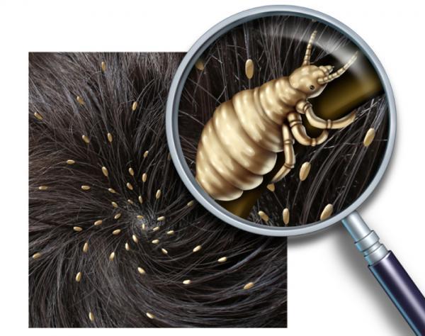 Por qué salen piojos en las pestañas y cejas y cómo eliminarlos - Contagio y síntomas de piojos en el cuerpo