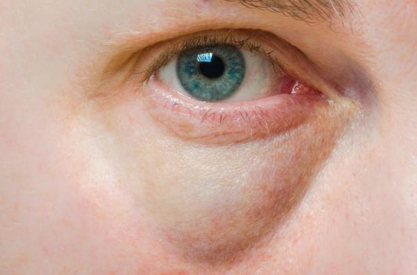 Tratamiento de bolsas y ojeras sin cirugía - Qué es la blefaroplastia sin cirugía