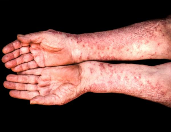 Psoriasis guttata: causas y tratamiento natural - Qué es la psoriasis guttata, causas y factores de riesgo