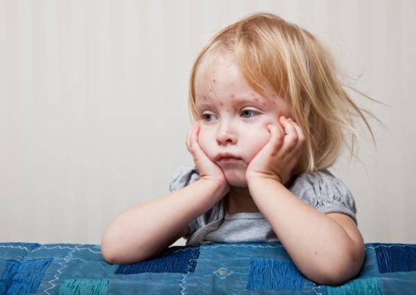 Manchas de Koplik y sarampión: causas y tratamiento - Cuál es la causa de las manchas de Koplik