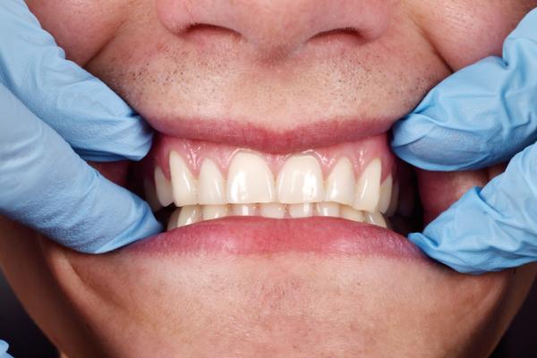 Propiedades y beneficios del Kalanchoe - Toma kalanchoe para tener la boca sana
