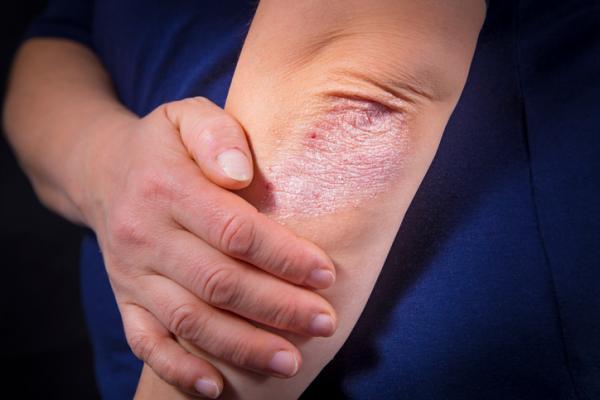 Por qué me pican los codos - Granitos en la piel que pican por dermatitis atópica