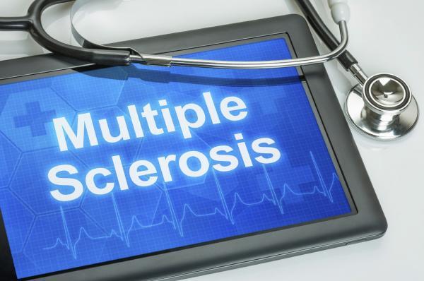 Por qué dan calambres en las manos - Calambres en las manos por esclerosis múltiple
