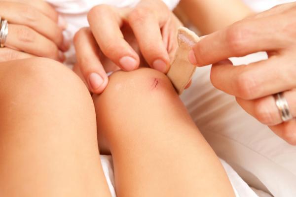 Por qué me pica una cicatriz - Cómo saber si una herida está sanando bien