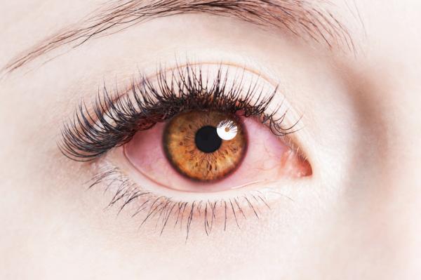 Por qué las lentillas me dan dolor de cabeza - Alergia provocada por las lentillas