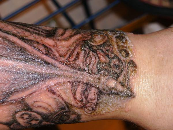 Cómo curar un tatuaje infectado - Cómo saber si un tatuaje está infectado – síntomas