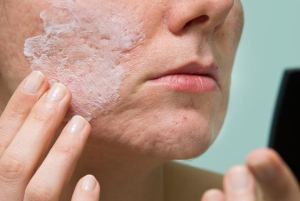 Mascarilla de arroz para el acné - Otras mascarillas con arroz para eliminar el acné