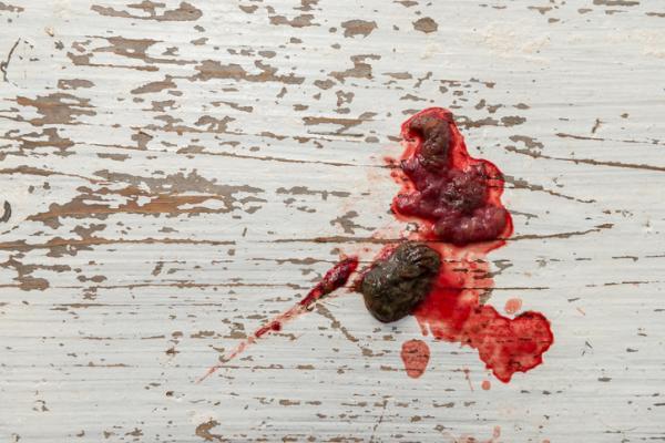 Por qué mi gato hace heces con sangre - Tipos de sangre en las heces de los gatos