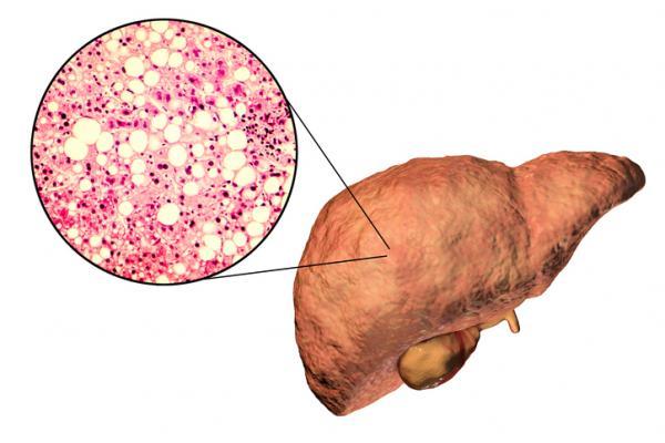 ¿La cola de caballo es buena para el hígado graso?