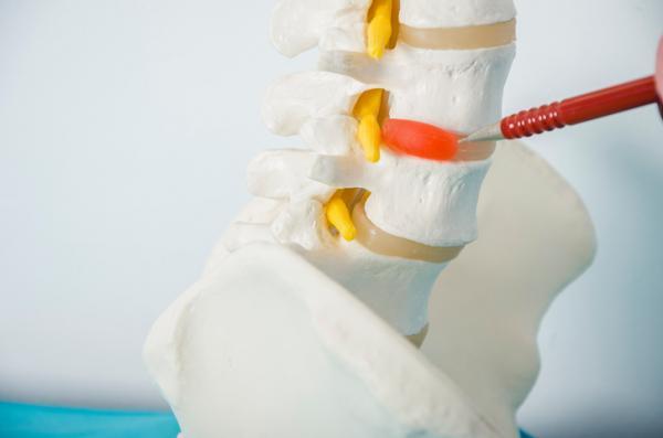 Por qué tengo un bulto en el cuello - Qué es una hernia cervical y cómo tratarla