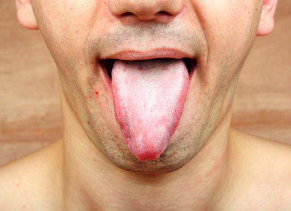 Cómo limpiar la lengua - Por qué limpiar la lengua