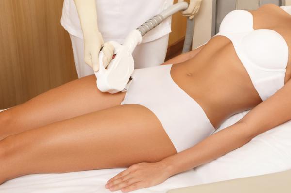 Cómo depilarse la zona íntima - Depilación láser para la zona íntima