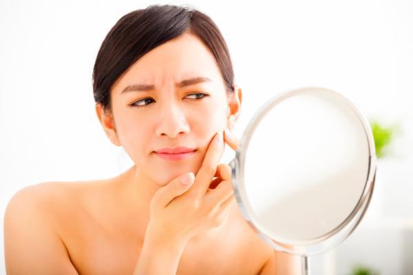 Tipos de granos en la piel - Granos internos