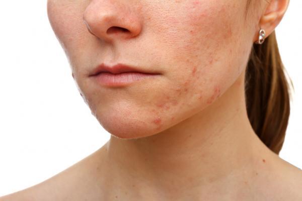 Tipos de granos en la piel - Granos comunes