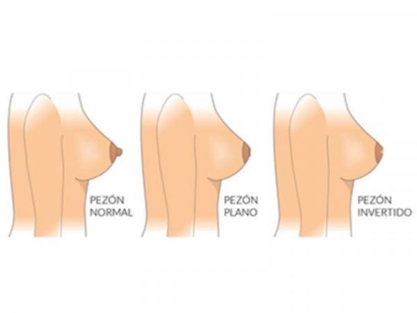9 tipos de pezones - Pezones planos o cortos