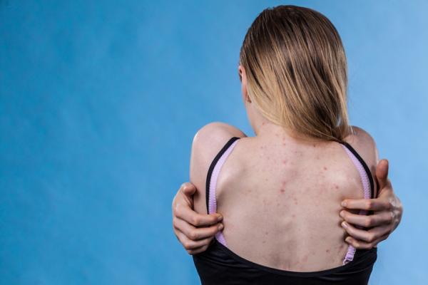 Cómo eliminar las espinillas en la espalda - Por qué salen las espinillas en la espalda