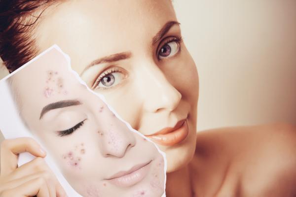 Para qué sirve la máscara LED facial y sus beneficios - Qué es la máscara LED facial y para qué sirve