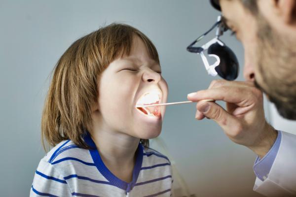 Qué son las placas en la garganta y cómo curarlas - Cuánto tiempo tardan en desaparecer las placas en la garganta