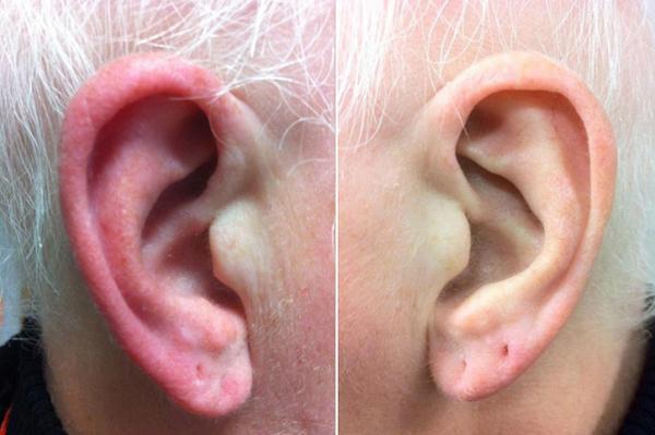 Por qué se me calientan las orejas - Síndrome de la oreja roja