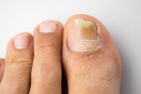 Cómo usar vinagre de manzana para los pies - Elimina y previene los hongos en los pies