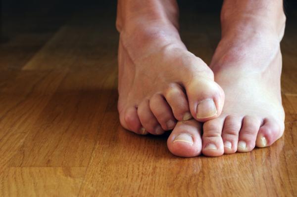 Cómo usar vinagre de manzana para los pies - Alivia los picores en los pies