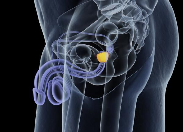 Alimentos perjudiciales para la próstata inflamada - La prostatitis y sus síntomas