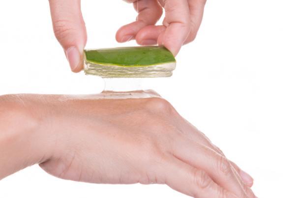 Remedios caseros para las ronchas en la piel - Aloe vera para la urticaria y las ronchas