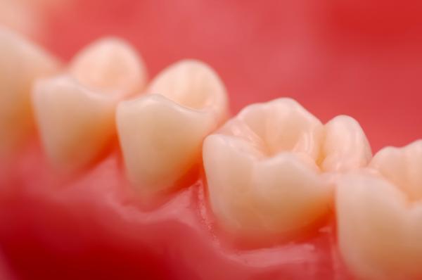 Por qué tengo las encías moradas - Gingivitis o inflamación de las encías