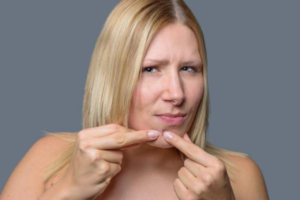 Cómo quitar los granos de la barbilla