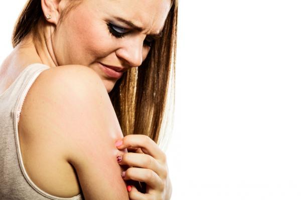 Remedios caseros para las ronchas en la piel