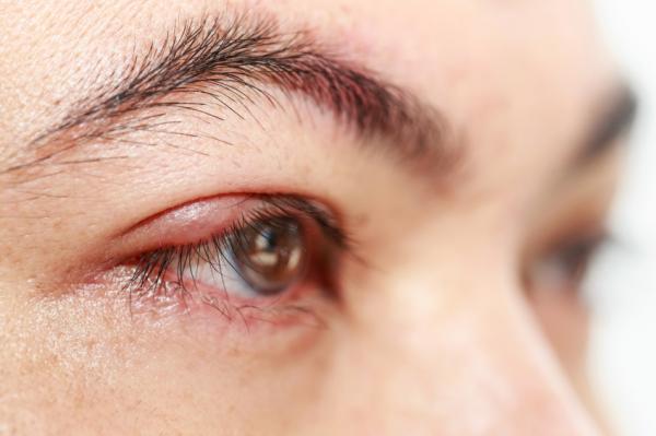 Por qué siento pinchazos en el ojo - Causas de los pinchazos en el ojo