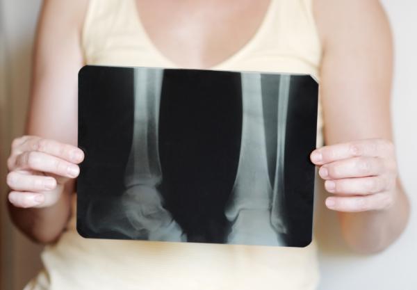 5 consecuencias de no hacer deporte - Más riesgos de sufrir enfermedades