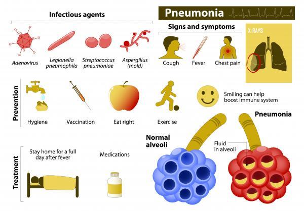 Cómo se contagia la neumonía - Cómo prevenir la neumonía
