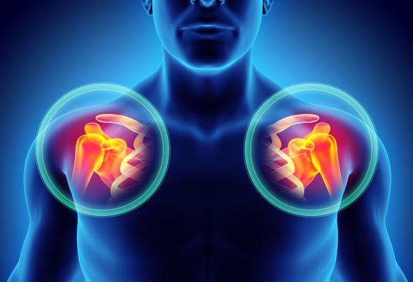 Por qué siento dolor en la clavícula - Lesión en la articulación del hombro