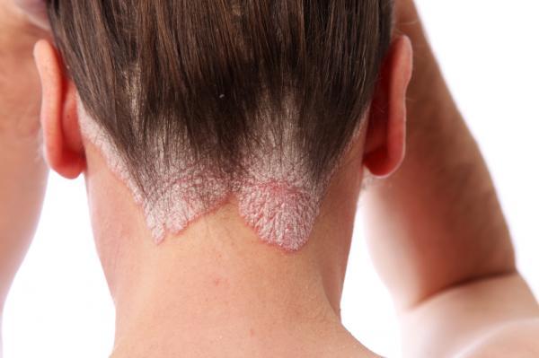 Cómo tratar la dermatitis seborreica - Paso 1