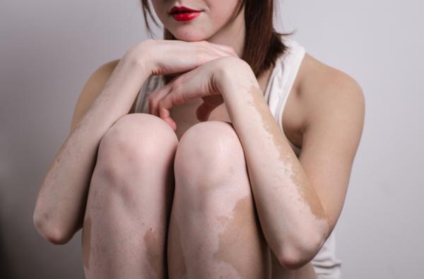 Causas de las manchas blancas en la piel - El vitíligo