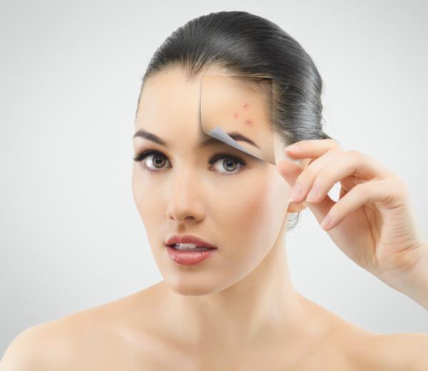 Increíbles propiedades cosméticas de la manteca de coco - Bueno para tratar las infecciones