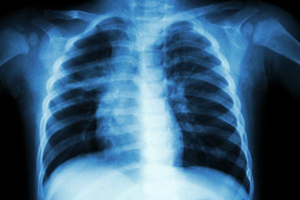 Cuáles son los huesos del tórax - ¿Qué es el tórax?