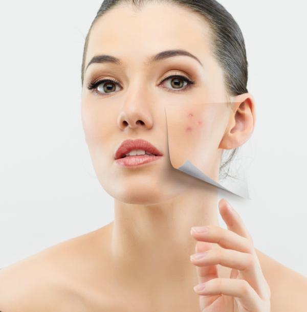¿Las pastillas anticonceptivas quitan el acné? - Las causas del acné