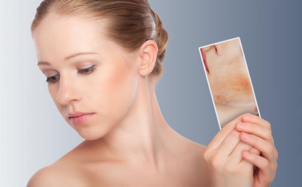 Cómo hacer un tónico para piel seca - Características de la piel seca
