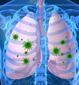 Cómo se contagia la neumonía