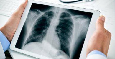 Cuáles son los huesos del tórax